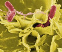 dipstick test for salmonella typhi
